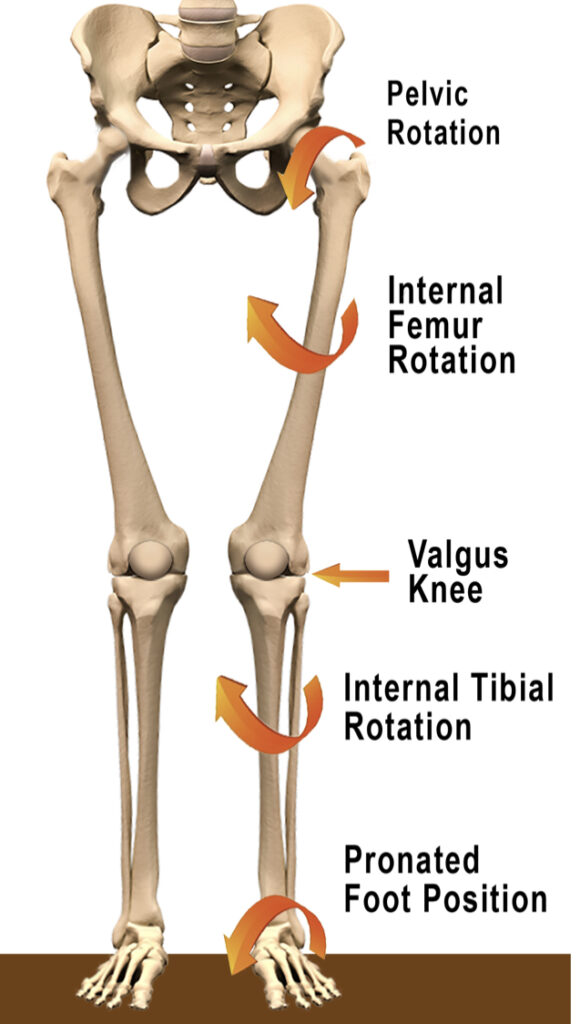 This image has an empty alt attribute; its file name is Foot-Pronation-Knee-valgus-580x1024.jpg