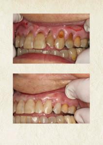 gum grafting 1