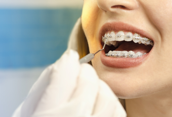 Closeup dental braces