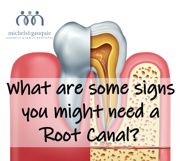 Tooth Root System with logo and text