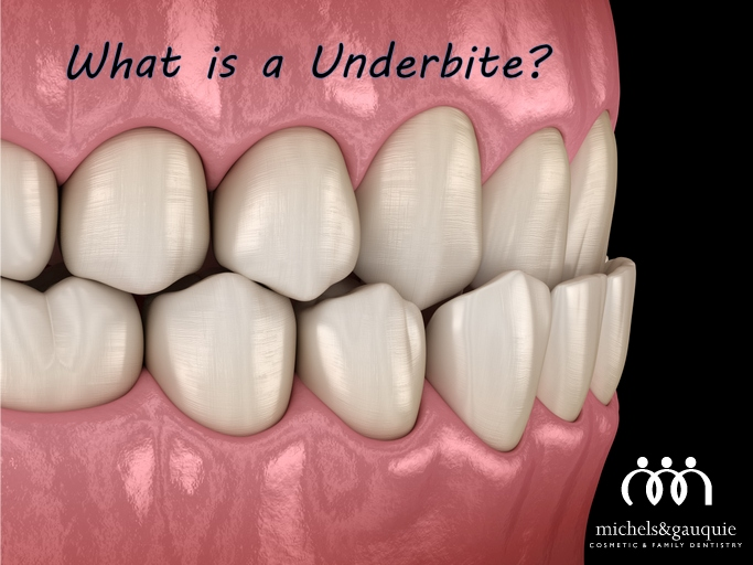underbite art with text and logo