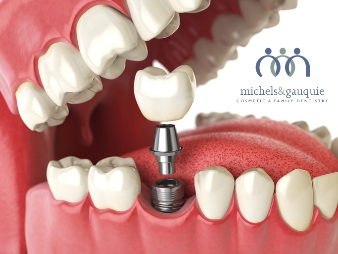 Dental implant mouth with teeth with logo