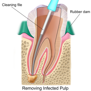 rootcanal2