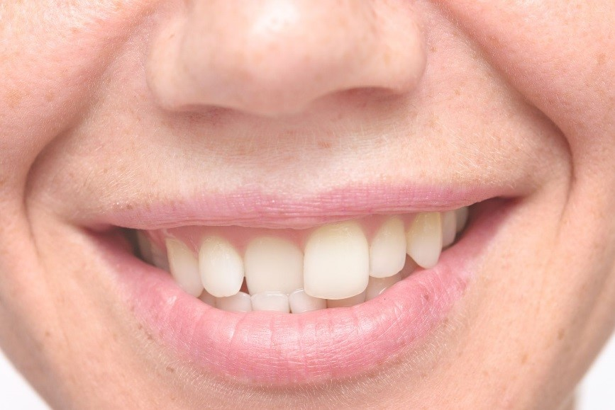 A Crooked Teeth Condition Can Affect a Lot of Areas in One's Health
