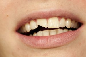 A Chipped Tooth Is Not Hopeless. Get to Know Three Dental Solutions