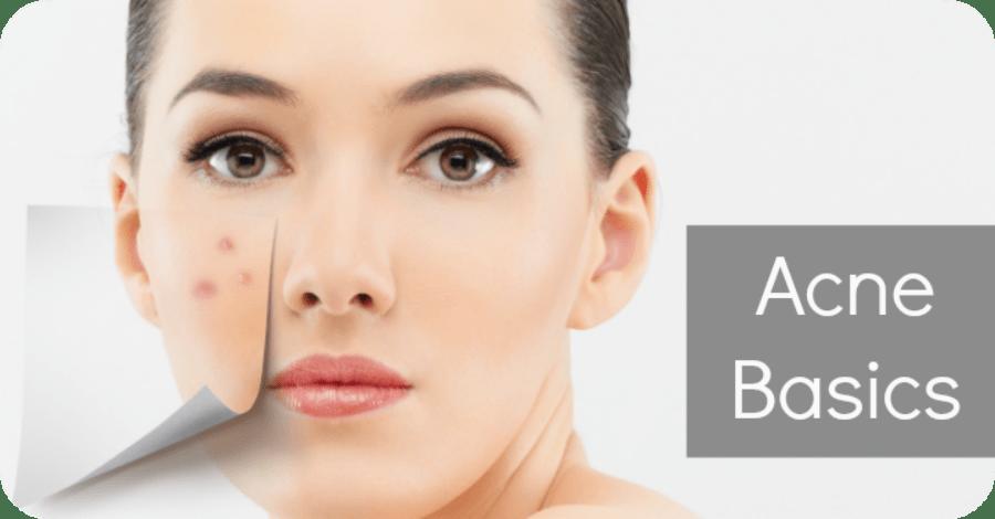 Acne Basics – Basic Care for Acne