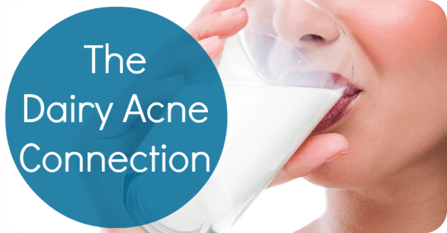 Does Dairy Cause Acne? The Dairy Acne Connection - https://healthpositiveinfo.com/the-dairy-acne-connection.html