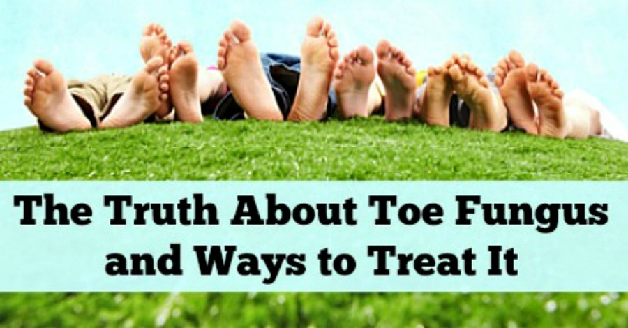 The Truth About Toe Fungus and Ways to Treat It - https://healthpositiveinfo.com/the-truth-about-toe-fungus-and-ways-to-treat-it.html
