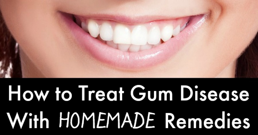 How to Treat Gum Disease with Homemade Remedies