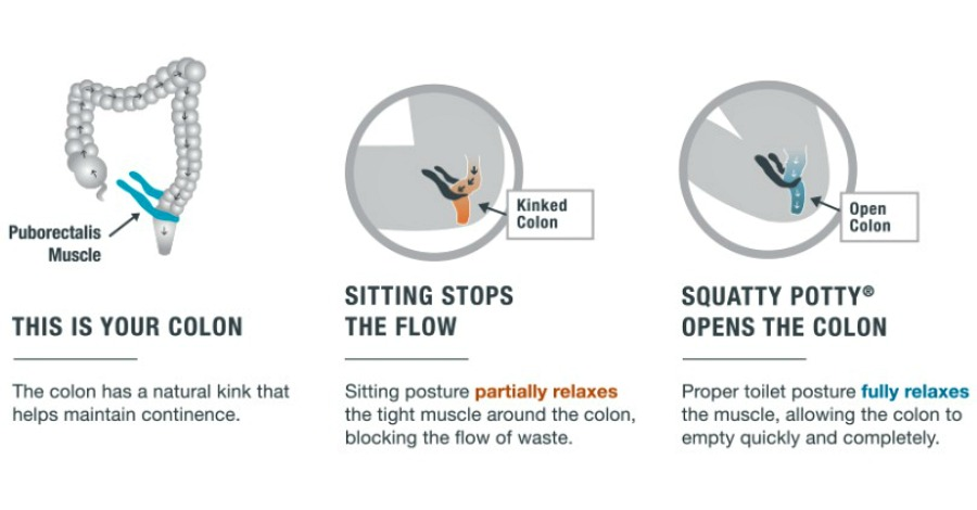 Why A Squatty Potty Is One of The Greatest Things You Can Own