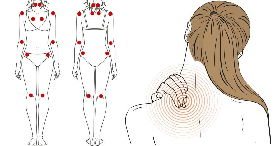 15 Common Signs and Symptoms of Fibromyalgia
