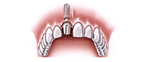 implants-dentistry-003