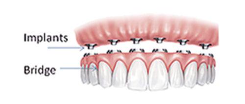 implants-dentistry-005