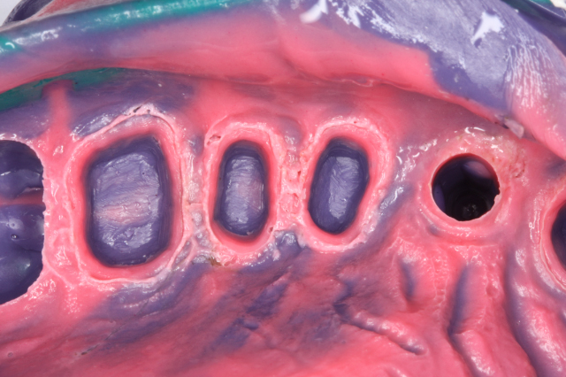 Gingival troughing with Picasso Lite Impression