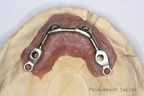 RL Implant Denture09