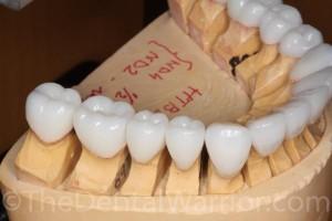 Gold Dust Dental Lab!
