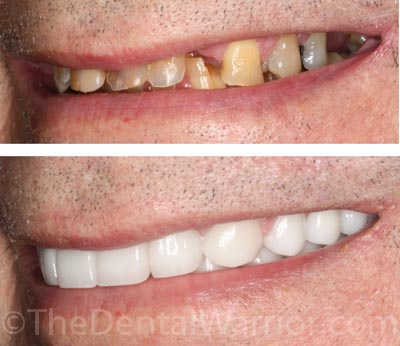 Dad's Smile Comps--5