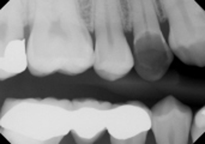 Pre-op BWX from previous dentist.