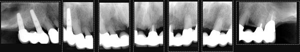 bridge-repair-x-rays