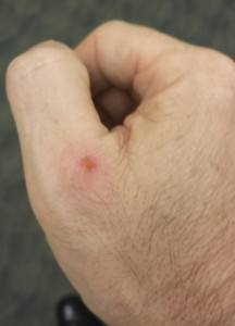 Skinned my knuckle on the edge of the holster leather.