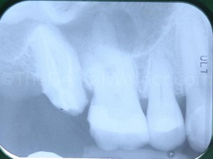 over-prepped-tooth-2