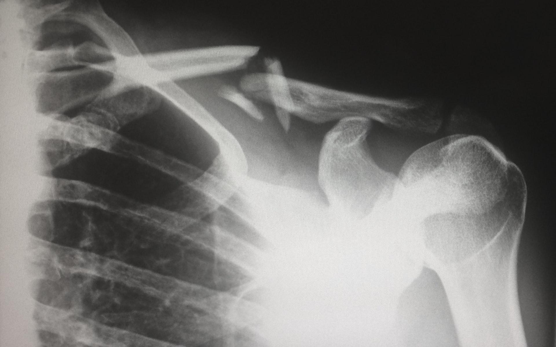 x-ray broken bone, arizona statute of limitations personal injury