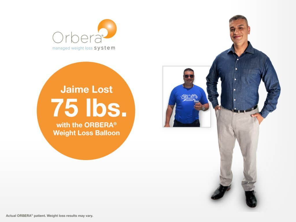 Orbera Gastric Balloon for Weight Loss
