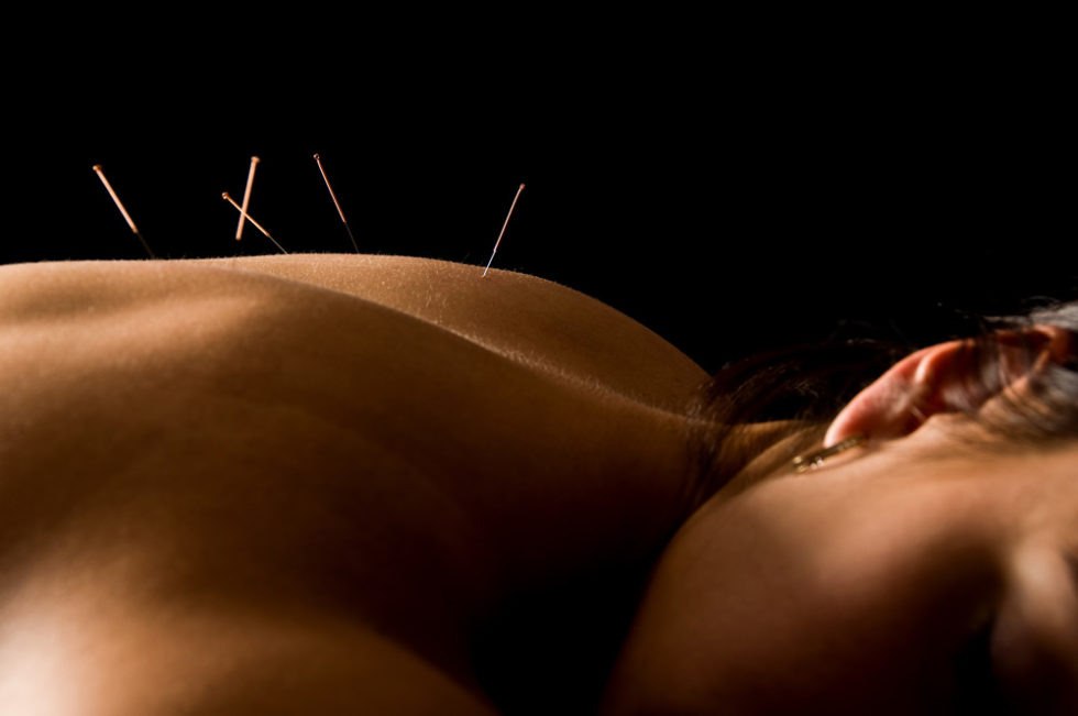 Acupuncture clinics Flowery Branch Georgia