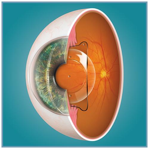 Dr Frank Burns Middletown Eye Care Visian