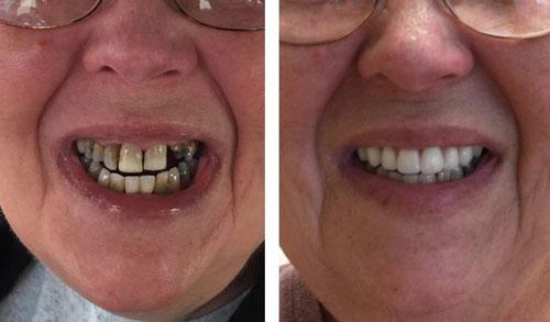 Complete & partial dentures