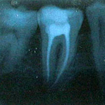 My root canal extraction adventure
