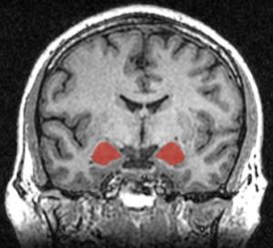Meditation decreases gray-matter density in the amygdala