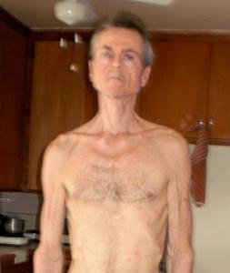Dan's return to health from severe environmental illness
