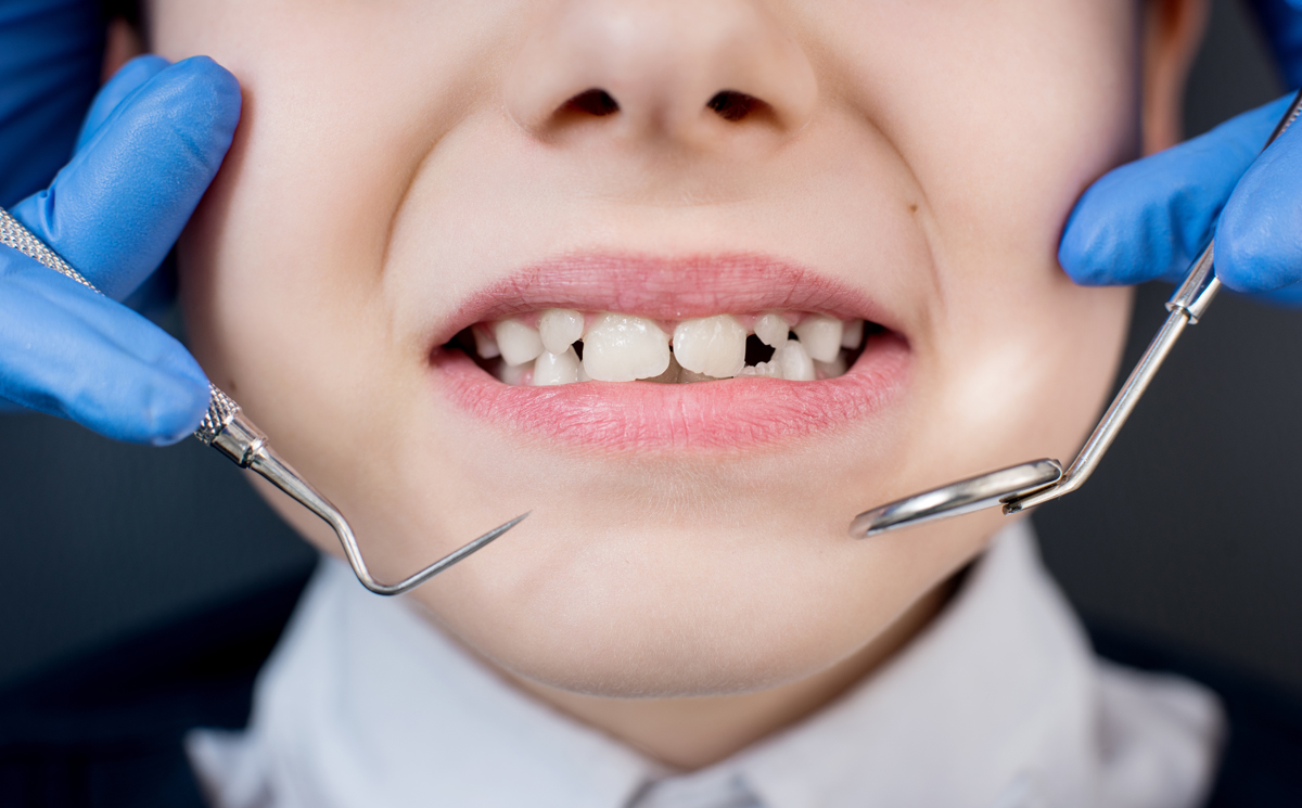 Don't Lie About Brushing and Flossing Habits