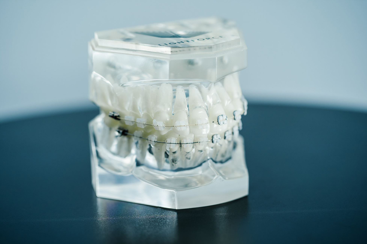 Our Orthodontics Team Now Offers 3D Printed Lightforce Clear Custom Brackets