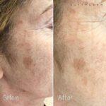 Dermapen micro-needling: hyperpigmentation and age spot reduction.