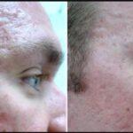 Dermapen micro-needling: scar reduction.