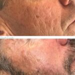 Dermapen micro-needling: acne scar reduction.