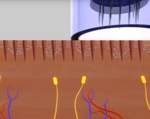 MDerma Micro-Needling skin treatment