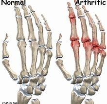 Arthritis/Joints