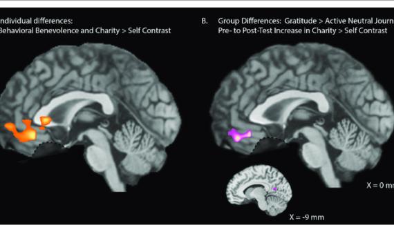 Whole-brain-analyses