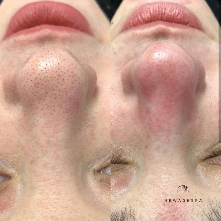 élimination des points noirs sur le nez résultats montréal