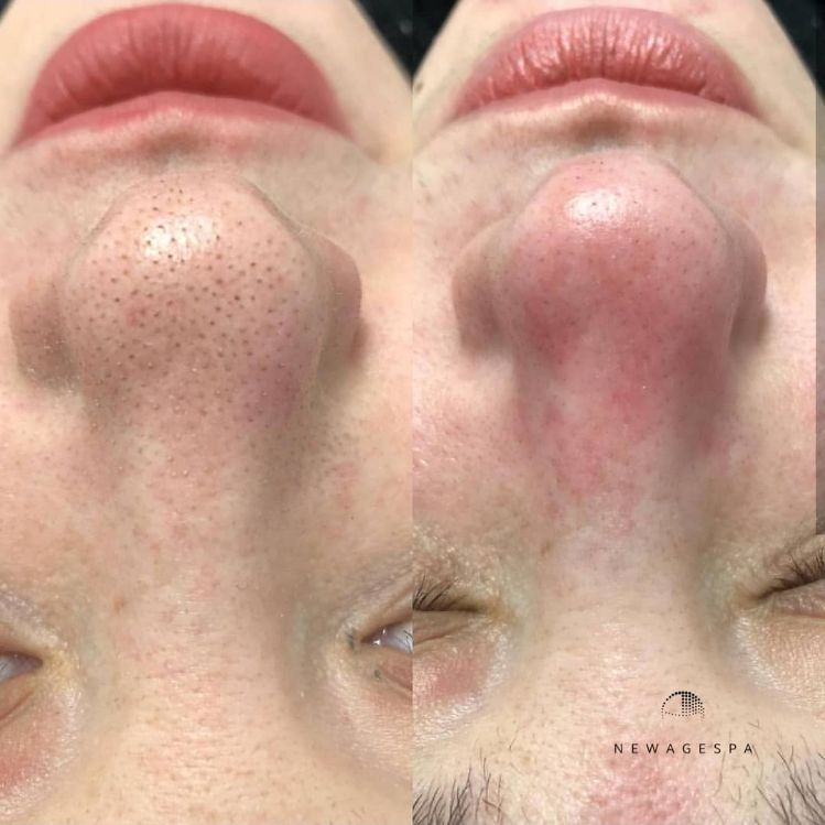 blackhead removal on nose montreal results