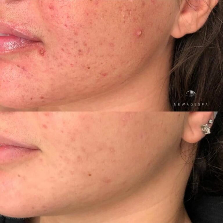 acne treatment in montreal microneedling spa