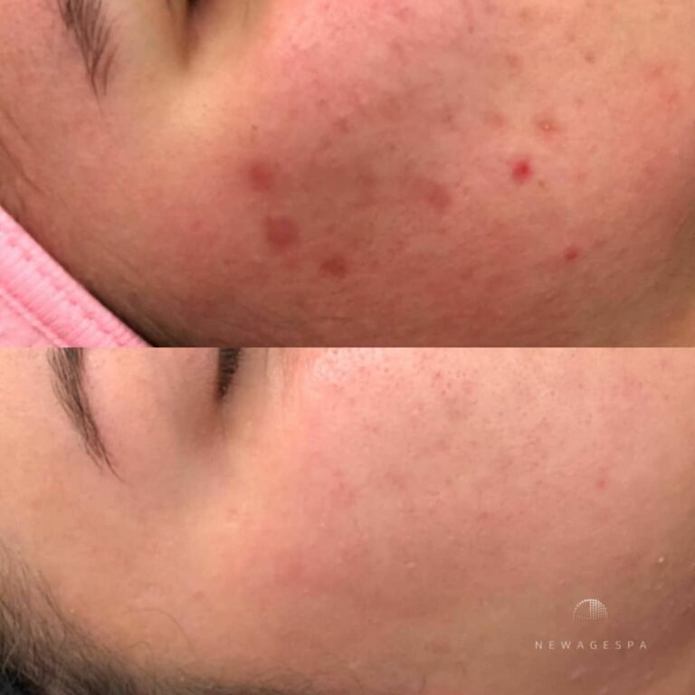 acne scar removal in montreal