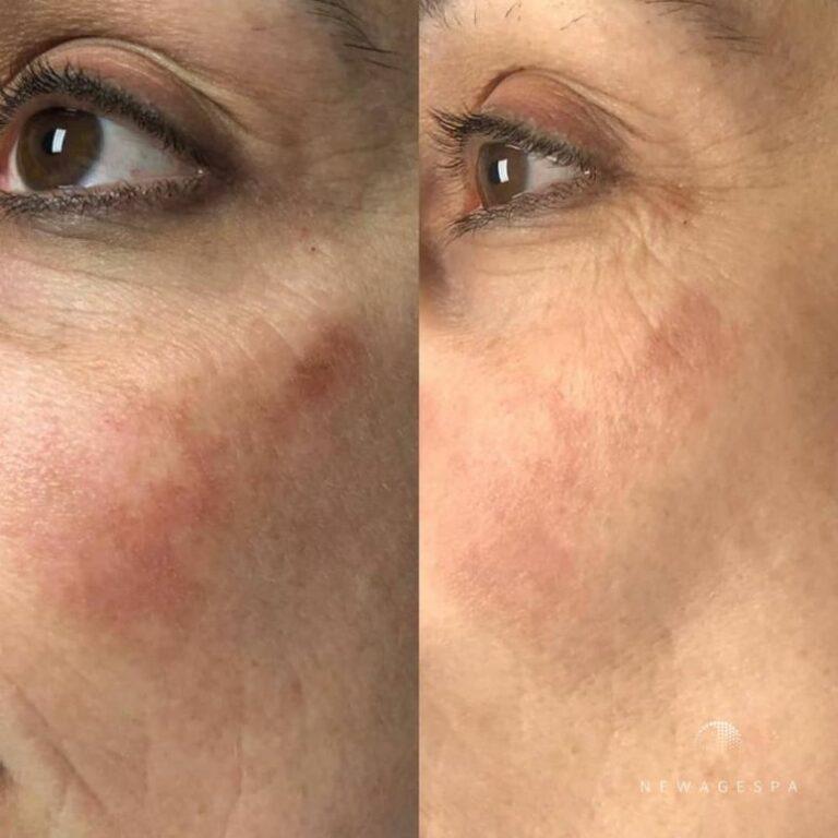soin du visage microneedling à montréal pour les taches solaires