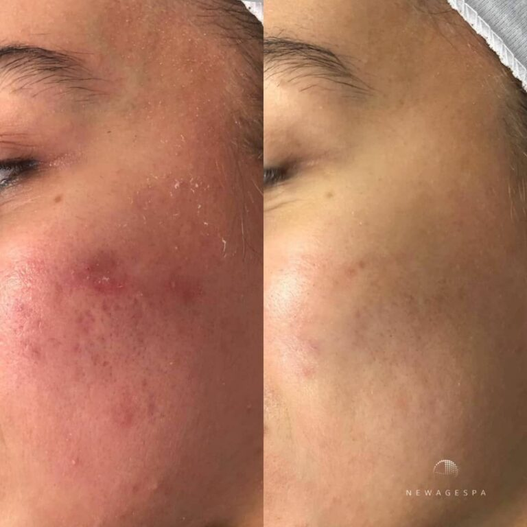redness removal microneedling new age spa