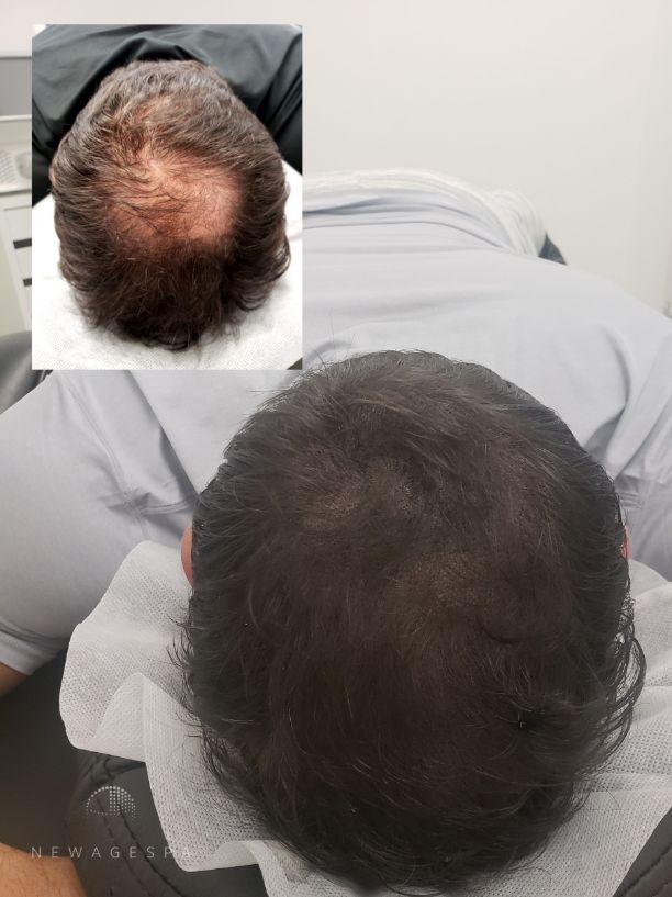 amincissement des cheveux micropigmentation camouflage perte de cheveux