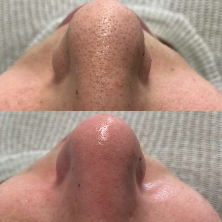 clean pores after facial result pictures