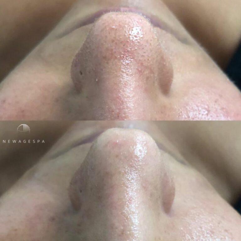 extractio nose black head
